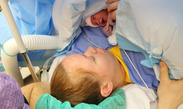 steriliseren keizersnede